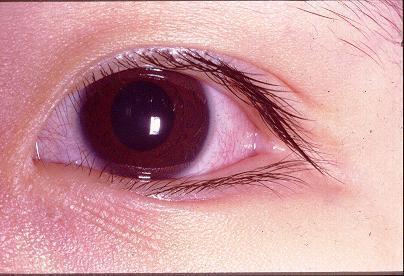 眼结构示意图睫状充血则代表眼球本身的